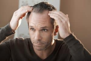 brotzu lotion for hair loss