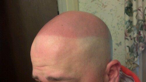 Hair Loss Sunburn