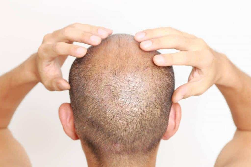 Xarelto and Hair Loss